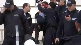 Policajka zamalo ostala bez oka na stadionu poslije eksplozije bombe (VIDEO)