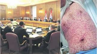 Virus morbila stigao u Vladu Srbije, svi hitno testirani